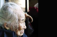 Cutaneous Horns... A rare medical condition where people will actually grow horns. It mostly affects men over 55 and women over 65. Photographs of seven cases. #strange