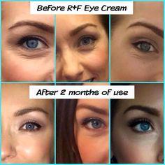 OMG!!!! Best Eye Cream EVER!!! (Rodan+Fields Redefine Multifunction Eye Cream) Love this stuff!!!