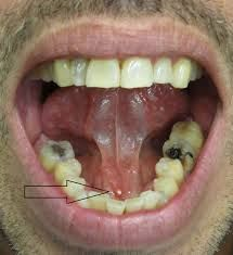 Pictures of tonsil stones expose tonsil stones which are ...
