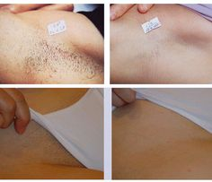 7 Best Laser Hair Removal Before And After Images Laser Hair