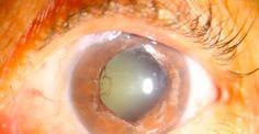 El glaucoma es la segunda causa de ceguera en los jóvenes  http://www.oftavision.com.mx/el-glaucoma-es-la-segunda-causa-de-ceguera-en-jovenes/