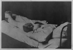 World War I solider in a full body cast.  National Library of Health and Medicine.