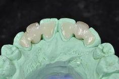 e.max Maryland Bridge ‹ ‹ Professional Dental StudioProfessional ...