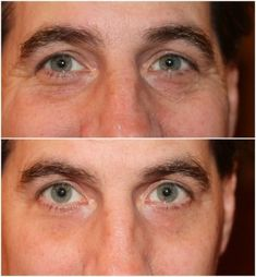 The results are amazing!  Look 10 years younger, in less than 2 minutes, for less than a dollar a day, with Instantly Ageless by Jeunesse!  Sample the hottest product in the world now at http://www.ebay.com/itm/Instantly-Ageless-by-Jeunesse-Samples-/181739329291?.