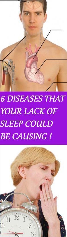 6 DISEASES YOUR LACK OF SLEEP COULD BE CAUSING