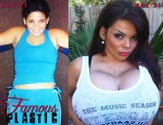 E Breast Implants Before And After 1000+ images about Tru...