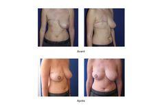 Reconstruction du sein en tunisie est une chirurgie esthétique qui, après l'ablation d'un sein, permet de restaure et de retrouver sein naturel