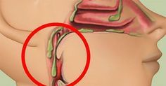 Certains aliments qui causent un excès de mucus doivent être évités pour ne pas aggraver la maladie, mais d'autres peuvent facilement diminuer les mucosités Les huiles essentielles contre les glaires