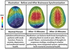 Science proves that we need meditation in our lives, who doesn't want better brain function? Come work on your meditation skills in the float tank, see how much better your brain functions when your done. Increase Memory, Binaural Beats, Brain Waves, Brain Fog, Normal Person, Successful Relationships, Physical Pain, Hypnotherapy, Subconscious Mind