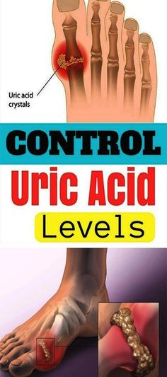 How To Control Uric Acid Levels - Healthy Beauty Ways Fitness Workouts, Purine Diet, Gout Recipes, Drink Recipes, Gout Remedies, Health Remedies, Underactive Thyroid, Uric Acid, Body Cleanse