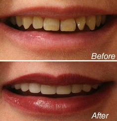 Teeth lightening products utilizes materials consisting of peroxide to provide the teeth a white and clean look. You can either visit the cosmetic dental practitioner or utilize a home-based whitening system. Dental Surgery, Dental Implants, Dentist Nyc, Celebrity Dentist, Tooth Extraction Care, Cosmetic Dentistry Procedures, Teeth Pictures, Botox Injections, Dental Crowns