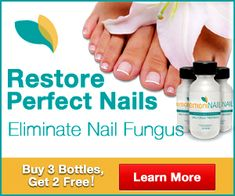 Grab detailed information about black toenail fungus. Use prescription-strength home remedies to get rid of black toenail fungus. Black Toenail Fungus, Toenail Fungus Remedies, Toenail Fungus Treatment, Nail Treatment, Fungus Toenails, White Spots On Toenails, Dead Toenail, Natural Home Remedies, Healthy Life