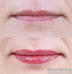Makijaż permanentny ust Na koniec wykonaliśmy u Emilii makijaż permanentny kontur ust z wypełnieniem. Podczas zabiegu wyrównaliśmy asymetrię ust powiększając delikatnie górną wargę. W efekcie Emilia zyskała zmysłowe i piękne usta!