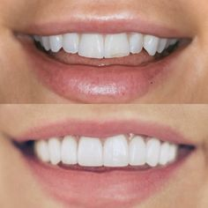 Veneers Before & After: The Prep, The Decision, The Results Smile Teeth, Teeth Care, Dog Teeth, Perfect Teeth, Perfect Smile, Composite Veneers, Teeth Whitening Procedure, Smile Drawing, Veneers Teeth