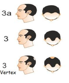 Stage 3 - Combination of medicines like Minoxidil 2% + Retin-A 0.025% helps.