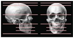 The human skull with measuring guides in place.