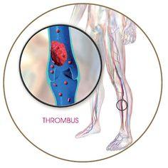 Trombózismegelőzés COVID fertőzésben: Minden súlyos és kritikus állapotban lévő COVID-19 páciensnek van esélye arra, hogy trombózis vagy akár embólia következzen be nála. A gyógyszeres megelőzést kiegészítheted trombózismegelőző kompressziós harisnyával, amelyet raktárról szállítunk Neked azonnal. Kattintás után tudhatsz meg többet, hogyan! Várlak szeretettel a blogomon! Coven, Blog, Blogging