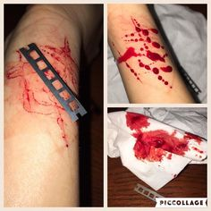 Cut again. Oops lol #selfharm #beautiful #blood #blades by lonely.gurrl