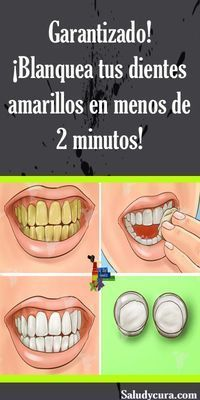 Dental Activities for Kids - Todo Sobre La Salud Bucal 2020 Dental Health, Oral Health, Health Tips, Health Benefits, Common Spices, Honey And Cinnamon, How To Slim Down, Natural Cures, Bones