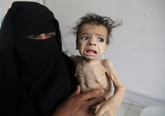 """Yemeni Journalist: Saudi Arabia's Total Blockade on Yemen is """"Death Sentence"""" for All Ugly Kids, Syrian Civil War, Today Pictures, Russia News, Health Ministry, Saudi Arabia, Human Rights, Take That, World"""