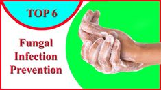 Fungal Infection Prevention – Top 6 Useful Methods to Stop the Fungal In...