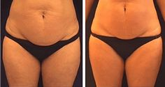 In addition, you can likewise develop cellulite if you do not exercise adequate or if you do not see what you eat very carefully. Food rich in carbs, fats, and low-fiber food boost fat storage in the body and triggers cellulite. Diy Beauty Face Mask, Grapefruit Benefits, Thigh Cellulite, Coconut Oil Cellulite, Cellulite Remedies, Secret Recipe, Healthy Tips, Beauty Women, Loosing Weight