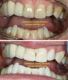 Recent Teeth Whitening Before and after Photos, Orange, CT. Dental Photos, Wood Bridge, Teeth Whitening, Orange, Food, Tooth Bleaching, Essen, Meals, Yemek