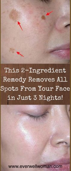 Use these homemade mixture for three nights to get a clean and smooth skin – Ever Well Women