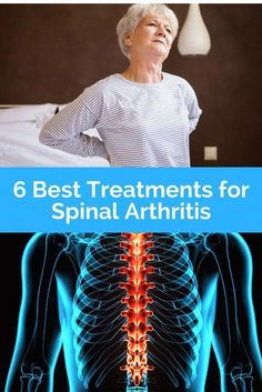 Discover spinal arthritis remedies and natural treatments to ease your discomfort. Learn about spinal arthritis causes and symptoms. Spinal Arthritis, Reactive Arthritis, Yoga For Arthritis, Juvenile Arthritis, Natural Remedies For Arthritis, Rheumatoid Arthritis Treatment, Knee Arthritis, Arthritis Relief, Rheumatoid Arthritis Symptoms