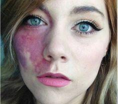 Garota com mancha no rosto é convidada para participar de programa bizarro e dá resposta incrível http://r7.com/FHRv