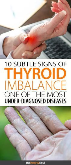 Are you suffering from increased stress levels and chronic fatigue? Check and see if you are displaying any of these 10 common(but often ignored) signs of thyroid imbalance.