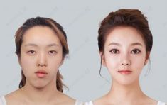 Double Jaw Surgery Asymmetrical Face, Korea Plastic Surgery Let Me In TV Show, V Shape Face, Face Shapes, Face Symmetry, Teeth Correction, Double Jaw Surgery, Facial Feminization Surgery, V Line Face, Face Yoga Exercises, Facial Yoga