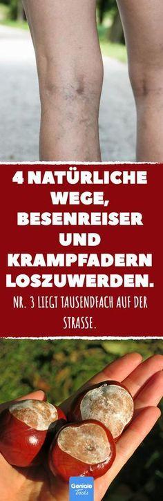 4 natürliche Wege, Besenreiser und Krampfadern loszuwerden. #krampfadern #besenreiser #hausmittel #natürlich #selbsthilfe