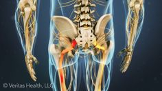 Learn how to take an active role in the treatment of your sciatica.