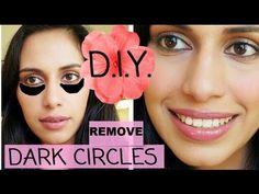 Under-Eye Dark Circle Home Remedies For Fast Results - NatuRelieved Under Eye Makeup, Under Eye Concealer, Under Eye Wrinkles, Prevent Wrinkles, Diy Beauty, Beauty Hacks, Beauty Tips, Beauty Ideas, Dark Circles Around Eyes