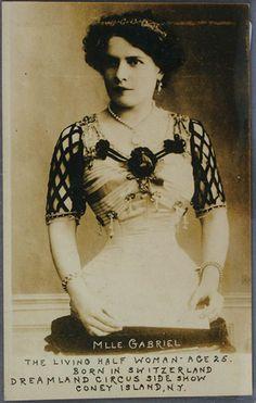 The Living Half Woman-Age 25.    Dreamland Circus Side Show, Coney Island,NY