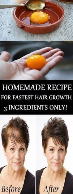 The Magic Recipe For Fastest Hair Growth! 3 Ingredients Only!