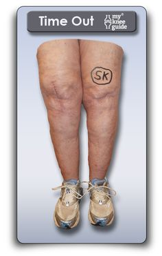 The orthopaedic surgeon initials the knee and performs a Time Out before knee replacement surgery to reduce the chance of mistakes.