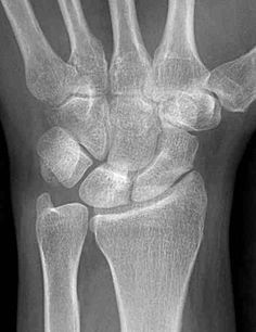 A positive ulnar variance describes a state where the ulna is lengthened when compared to the radius. The ulna then impinges on the TFCC during forearm rotation