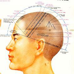 Scalp Acupuncture 1.jpg (1020×1025)