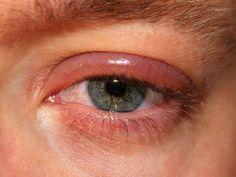 BLEFARITIS O INFLAMACIÓN DEL PÁRPADO - La #blefaritis es posiblemente la afección más frecuente del sistema visual. Síntomas, causas, tipos y tratamientos. Te contamos todo lo que debes saber para indentificar esta patología e incluso algún remedio casero.