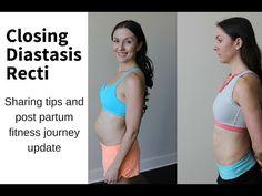 My diastasis recti update. Post Partum belly. -