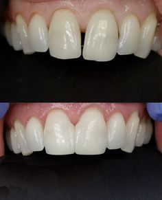 Another space closed and smile improved with the Bioclear Method! If you hate your space, don't live with it! We can help! Cosmetic Dentistry, Dental, Hate, Smile, Teeth, Dentist Clinic, Tooth, Dental Health, Laughing
