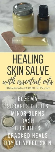 DIY all-purpose essential oil healing skin salve recipe: eczema, chapped skin, cracked heels, minor cuts, bug bites, bee stings, rash, burns, and more.