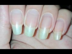 How to Grow your Nails Fast in One Week| Using Garlic and Olive Oil - YouTube