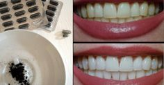 use charcoal to whiten your teeth! Leave for three min Beauty Secrets, Beauty Hacks, Cosmetic Treatments, Chocolate Chip Recipes, Diy Spa, Slow Food, Natural Cosmetics, Natural Herbs, Health And Beauty