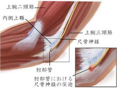 肘部管症候群 (Cubital tunnel syndrome)