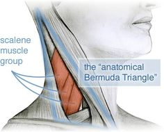 [Image: diagram of anatomical bermuda triangle, a region of intriguing musculature, especially the scalene muscle group with its common and clinically significant myofascial trigger points.]