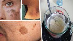 Nuestra piel puede mancharse por distintos factores, pueden ser por problemas con la melanina de la piel, o también por factores externos como el sol, la temperatura o algún producto que hayamos aplicado sobre la piel.
