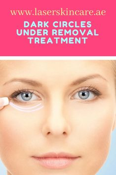 Results of Dark circles removal in Dubai are quick and long-lasting. Your dark circles will dramatically reduce after the very first treatment. After 4 to 6 Laser Treatments, dark circles will be a thing of the past and you can forget about buying the concealer.